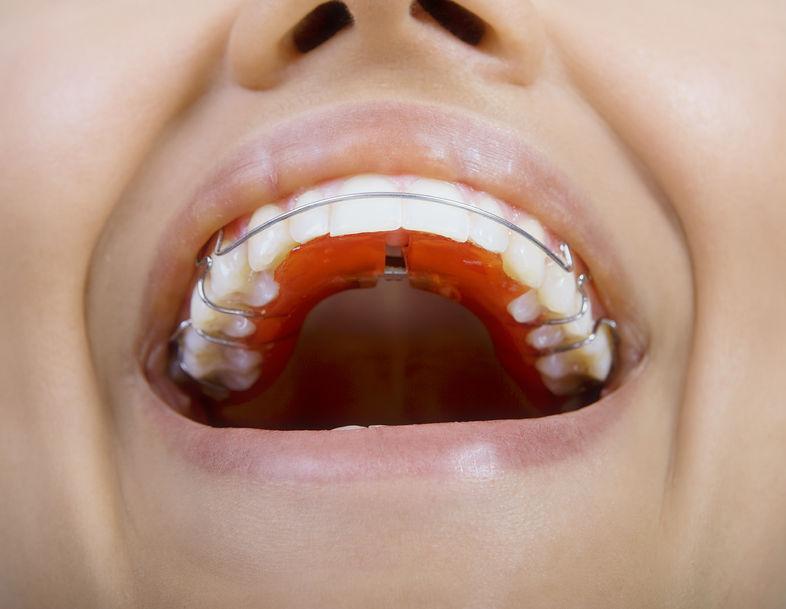 Orthodontist | Retainer | Invisalign | Dental Braces